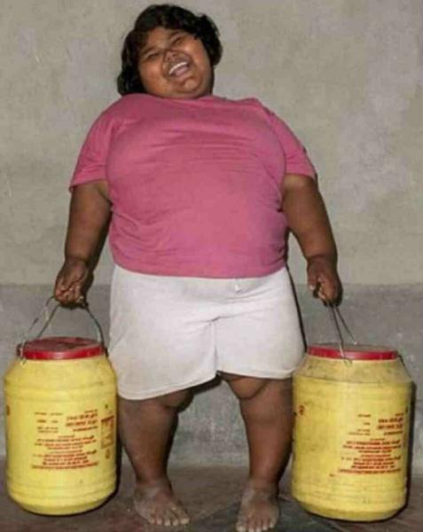 Девочка, которая в 6 лет весила 91 кг, как сейчас она живет